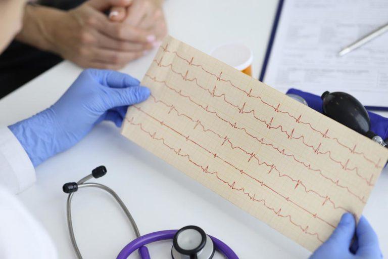 DHEA Cardiovascular System