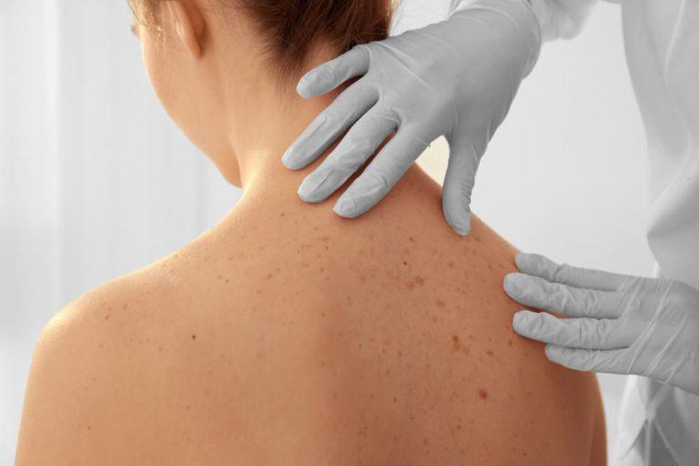 DHEA Dermatological System